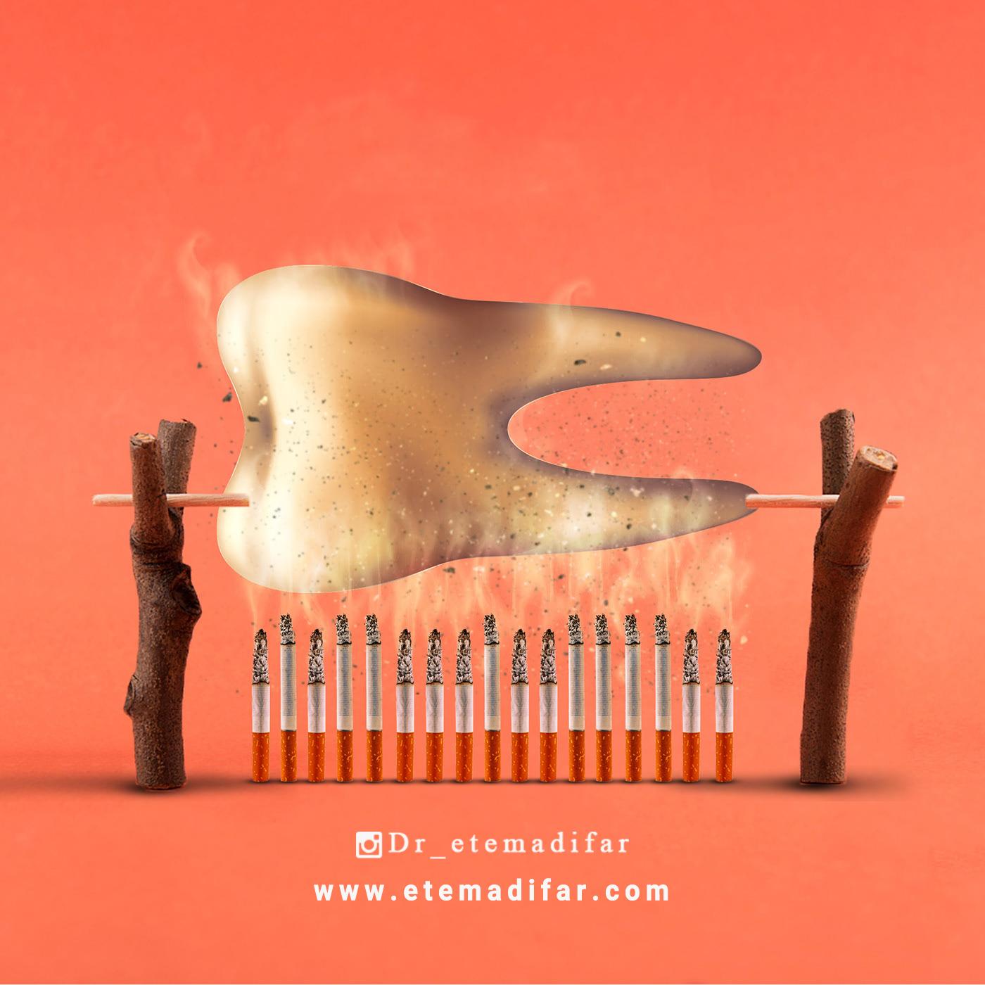 اثرات سیگار بر موفقیت کاشت ایمپلنت دندان
