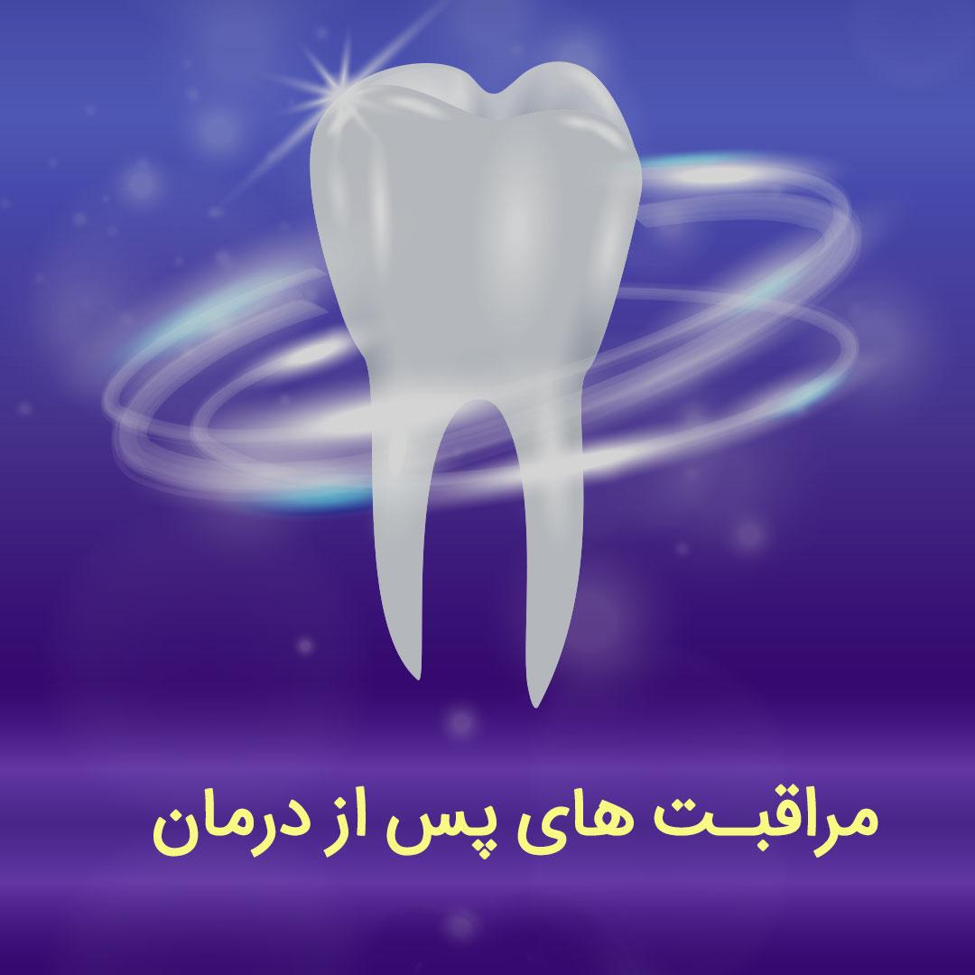 مراقبت بعد از درمان دندانپزشکی
