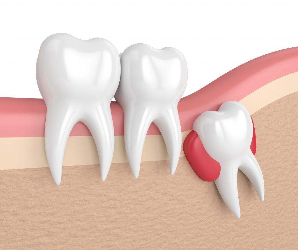 عوارض دندان نهفته