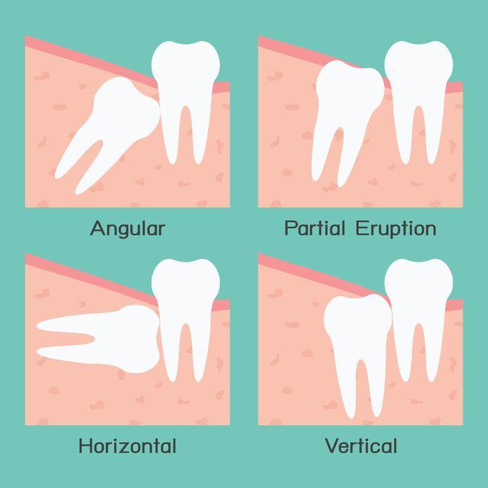 انواع دندان نهفته